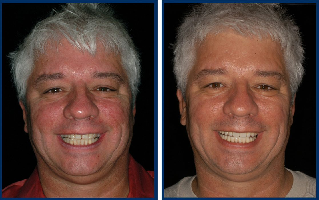 dr-hal-stewart-before-after-3