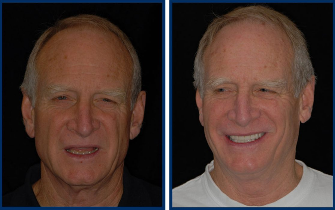 dr-hal-stewart-before-after-4
