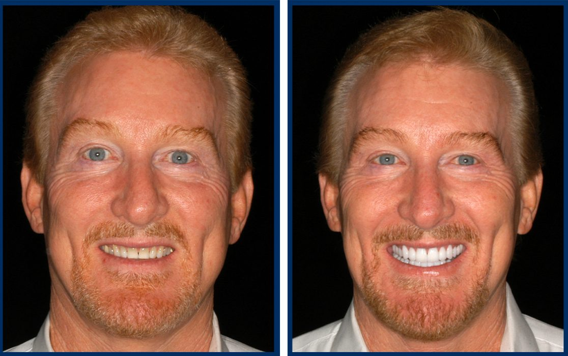 dr-hal-stewart-before-after-7