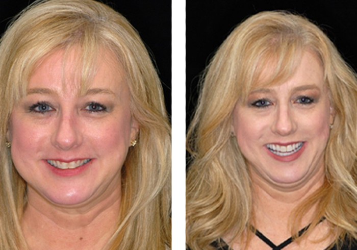 dr-hal-stewart-stacy-before-after