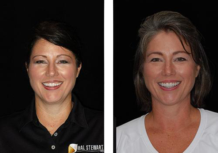sherri-stroud-before-and-after-1